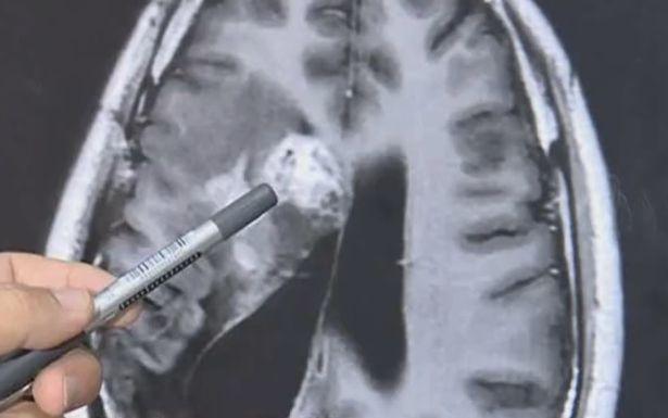 Homem retira verme de 12 cm que comia seu cérebro há 15 anos