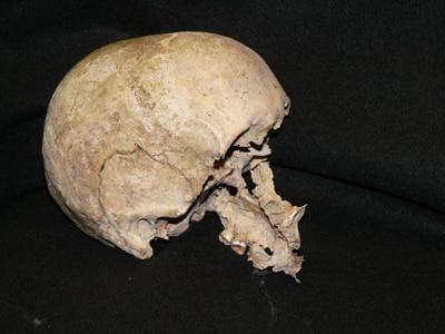 Crânio de patty cannon em exposição mundo sombrio