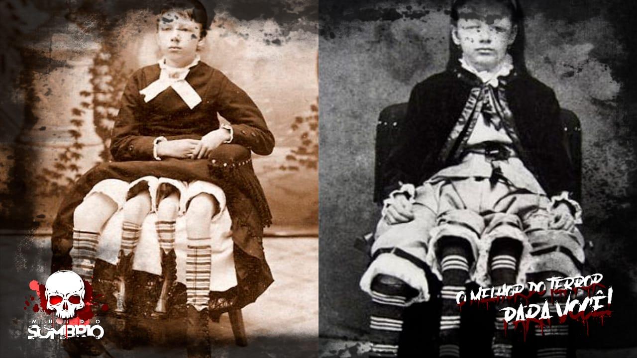 Josephine Myrtle Corbin, a mulher de 4 pernas mundo sombrio
