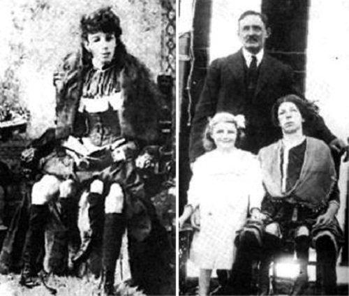 Josephine myrtle corbin, a mulher com 4 pernas e família